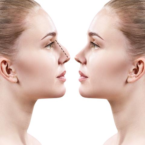 nose correction dermal fillers