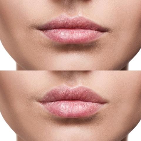 lip dermal fillers